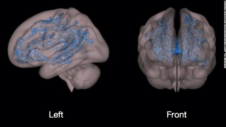 Tác hại của các thiết bị điện tử đến não bộ trẻ.