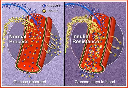 Bệnh tiểu đường loại 2 do nguyên nhân nào?